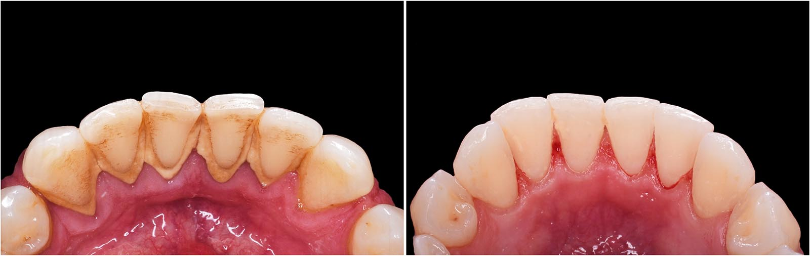 gold coast dentist check up and cleans
