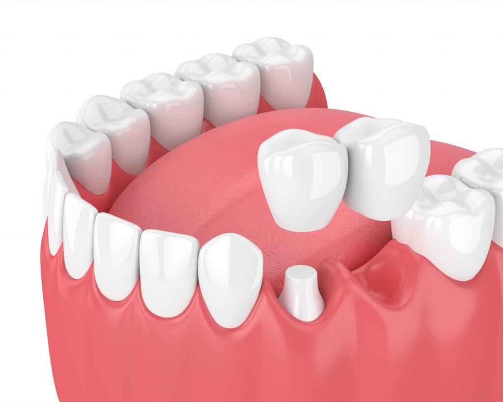 Cantilever dental bridges gold coast