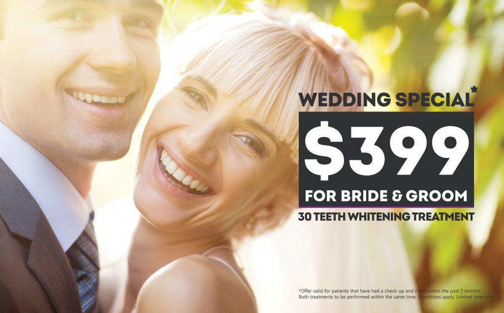 Bride and Groom Teeth Whitening Package