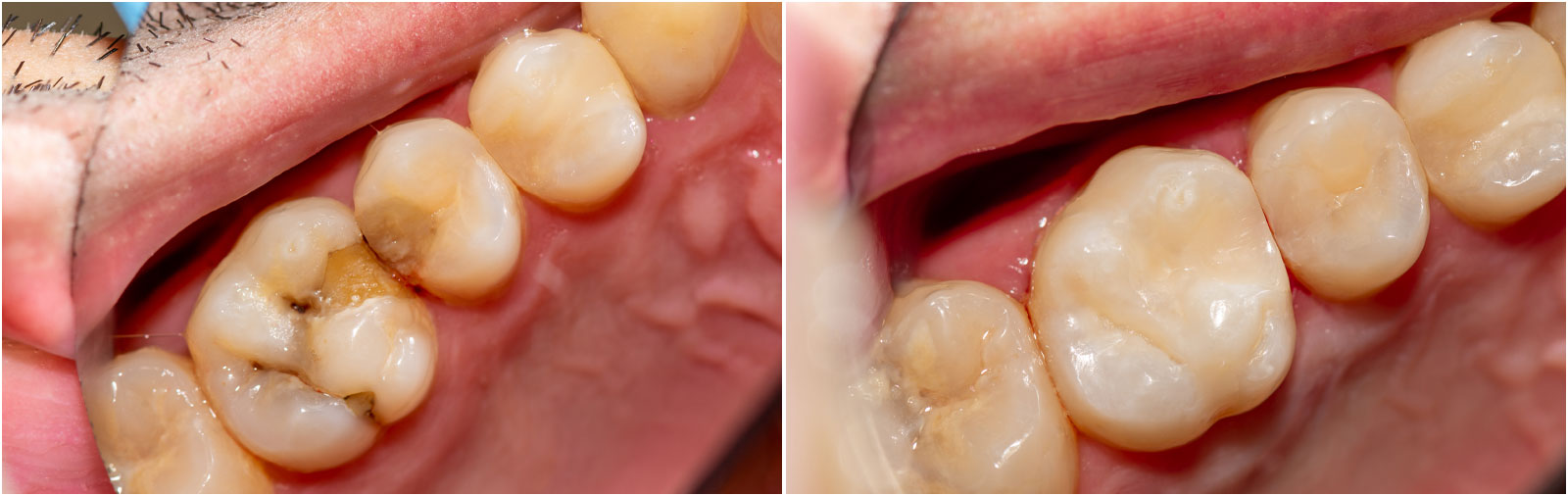dental fillings gold coast dentist