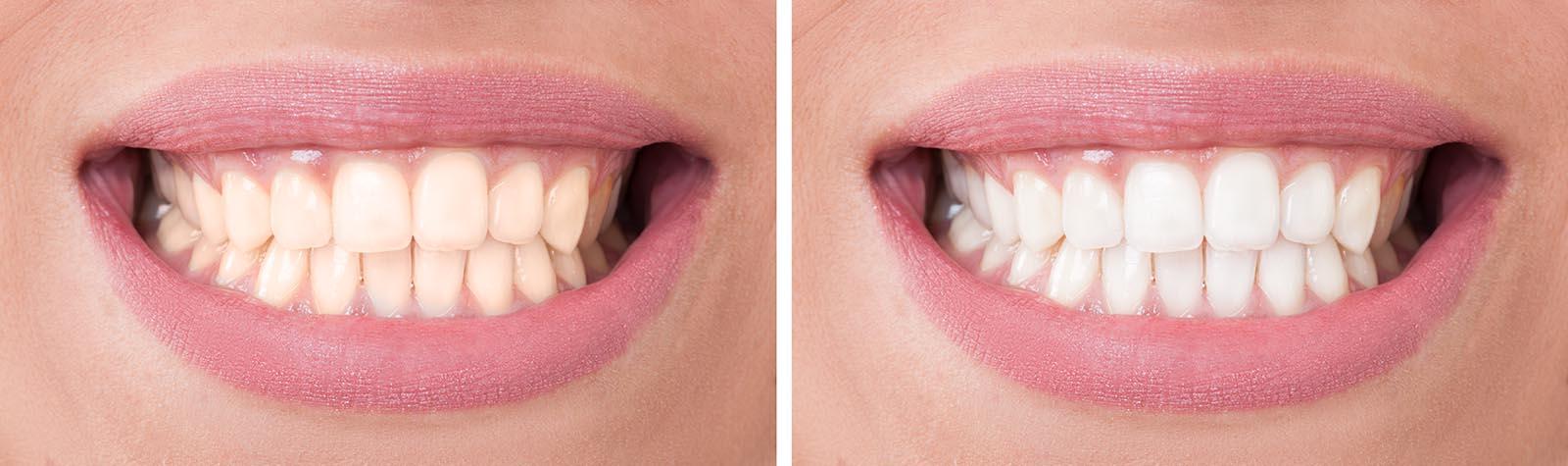 teeth whitening dentist gold coast