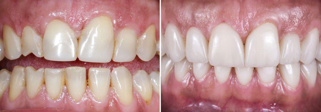 veneers gold coast dentist
