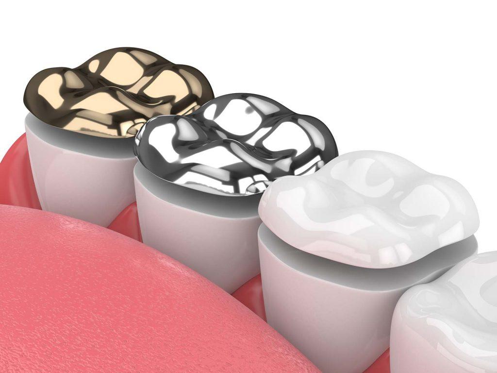 gold coast dental onlays
