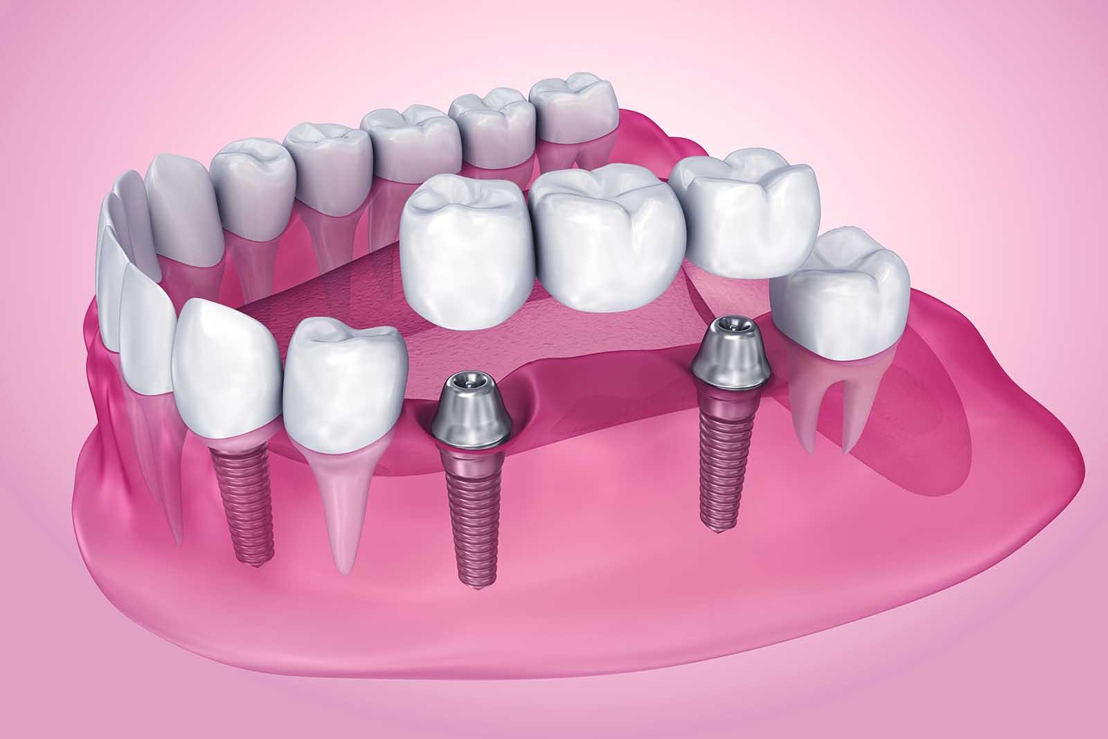 Dental Implants Gold Coast