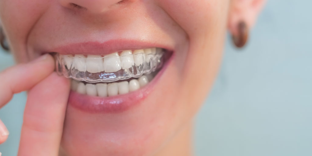 clear aligners gold coast